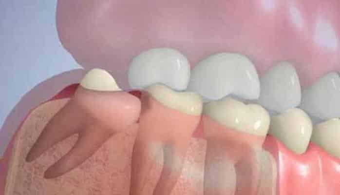 Ağıl dişini çıxarmaq lazımdırmı?