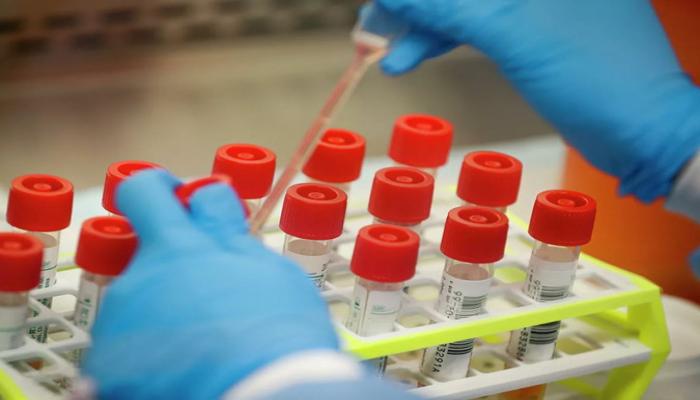 Son sutkada Azərbaycanda koronavirusa yoluxma kəskin artdı