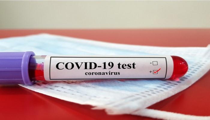 В Азербайджане 84 новых случая заражения коронавирусом